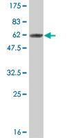 WB - CNOT7 Antibody (monoclonal) (M01) AT1573a