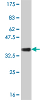 WB - COL23A1 Antibody (monoclonal) (M03) AT1582a