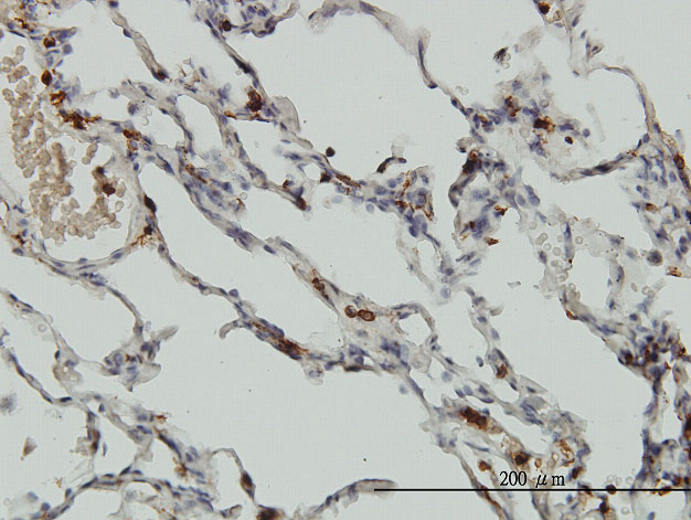 IHC - CORO1A Antibody (monoclonal) (M01) AT1594a