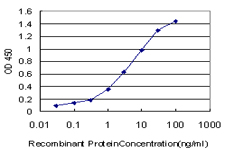 E - CPS1 Antibody (monoclonal) (M01) AT1608a