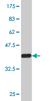 WB - CPS1 Antibody (monoclonal) (M02) AT1609a