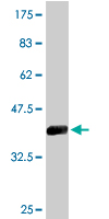 WB - CPSF3 Antibody (monoclonal) (M06) AT1611a