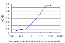 E - CRYGD Antibody (monoclonal) (M03) AT1644a