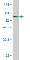 WB - CTH Antibody (monoclonal) (M03) AT1668a