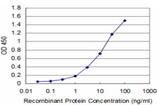 E - CTH Antibody (monoclonal) (M03) AT1668a