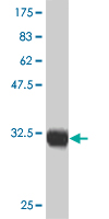 WB - CTNNB1 Antibody (monoclonal) (M02) AT1674a