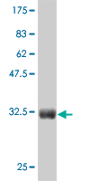 WB - CTNNB1 Antibody (monoclonal) (M07) AT1675a