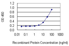 E - CTNNBL1 Antibody (monoclonal) (M01) AT1677a
