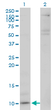 WB - CXCL5 Antibody (monoclonal) (M03) AT1693a