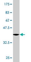 WB - DCP1A Antibody (monoclonal) (M06) AT1717a