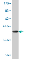 WB - DCP1A Antibody (monoclonal) (M07) AT1718a