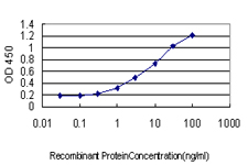 E - DCTN2 Antibody (monoclonal) (M01) AT1722a