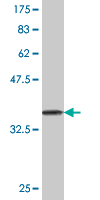 WB - DDEF1 Antibody (monoclonal) (M02) AT1730a
