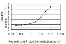 E - DDX20 Antibody (monoclonal) (M01) AT1733a