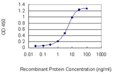 E - DDX26 Antibody (monoclonal) (M02) AT1734a