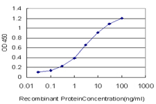 E - DDX3Y Antibody (monoclonal) (M01) AT1735a
