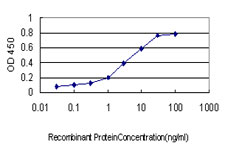 E - DDX41 Antibody (monoclonal) (M01) AT1736a