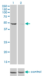 E - DDX6 Antibody (monoclonal) (M01) AT1743a