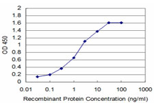 E - DHFR Antibody (monoclonal) (M01) AT1758a