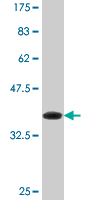 WB - DHX8 Antibody (monoclonal) (M07) AT1761a