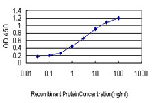 E - DLL1 Antibody (monoclonal) (M01) AT1772a