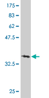 WB - DND1 Antibody (monoclonal) (M07) AT1799a