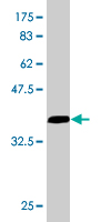 WB - EIF4G1 Antibody (monoclonal) (M01) AT1880a