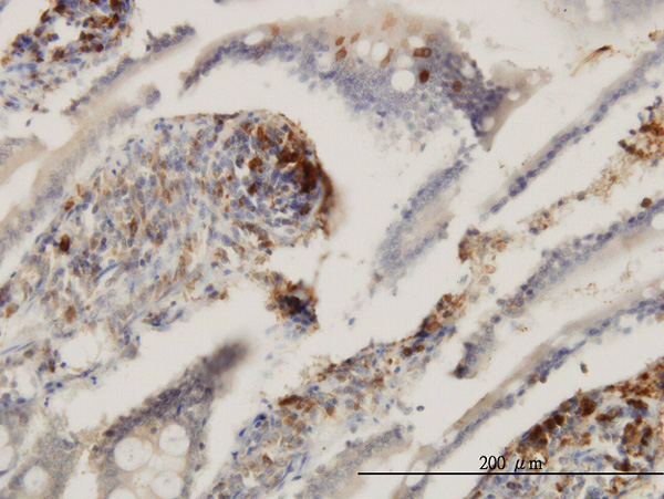 IHC - ENTPD6 Antibody (monoclonal) (M03) AT1917a