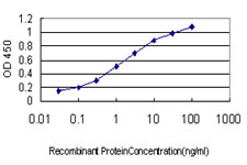E - ERN1 Antibody (monoclonal) (M02) AT1944a