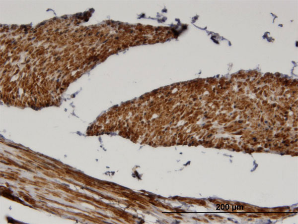 IHC - FADS1 Antibody (monoclonal) (M04) AT1989a