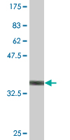 WB - FADS1 Antibody (monoclonal) (M04) AT1989a