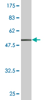 WB - FCGR3A Antibody (monoclonal) (M03) AT2028a