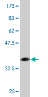 WB - FCN1 Antibody (monoclonal) (M06) AT2029a