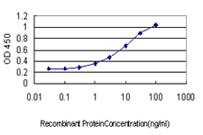 E - FOXC2 Antibody (monoclonal) (M02) AT2088a