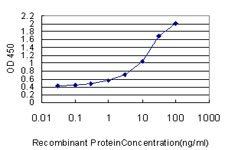 E - FOXC2 Antibody (monoclonal) (M03) AT2089a
