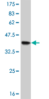 WB - FOXF2 Antibody (monoclonal) (M08) AT2094a