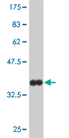 WB - FOXO1A Antibody (monoclonal) (M02) AT2099a