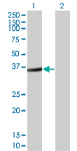 WB - FRZB Antibody (monoclonal) (M05) AT2110a
