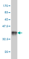WB - FTCD Antibody (monoclonal) (M01) AT2112a