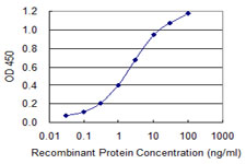 E - FTCD Antibody (monoclonal) (M02) AT2113a