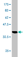 WB - FTCD Antibody (monoclonal) (M02) AT2113a