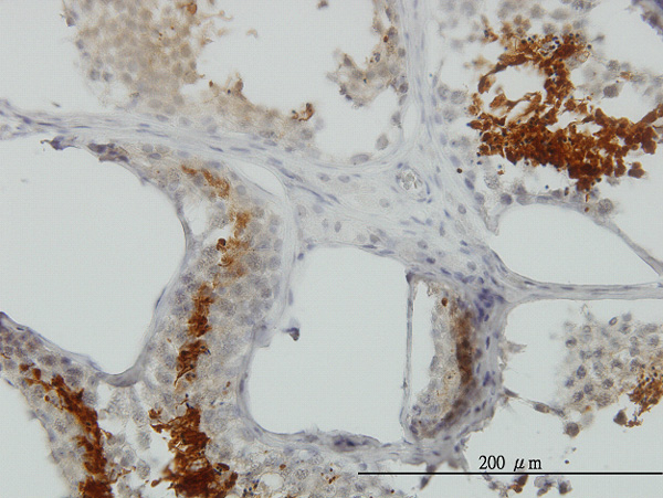 IHC - GAPDS Antibody (monoclonal) (M01) AT2153a