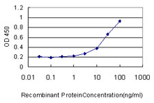 E - GBA Antibody (monoclonal) (M01) AT2167a