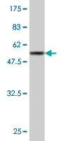 WB - GCLM Antibody (monoclonal) (M02) AT2178a
