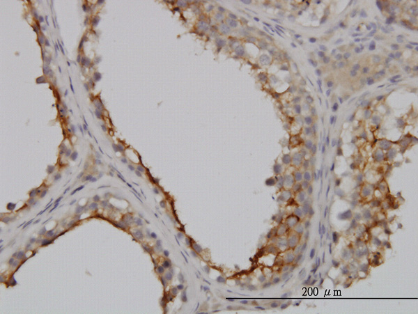 IHC - GGT1 Antibody (monoclonal) (M01) AT2197a