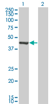 WB - GMPPA Antibody (monoclonal) (M01) AT2221a