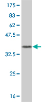 WB - GRM7 Antibody (monoclonal) (M01) AT2265a