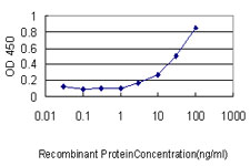 E - GSDMDC1 Antibody (monoclonal) (M01) AT2269a