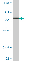 WB - GSDML Antibody (monoclonal) (M05) AT2270a