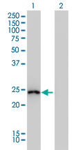 WB - GSTA1 Antibody (monoclonal) (M01) AT2275a